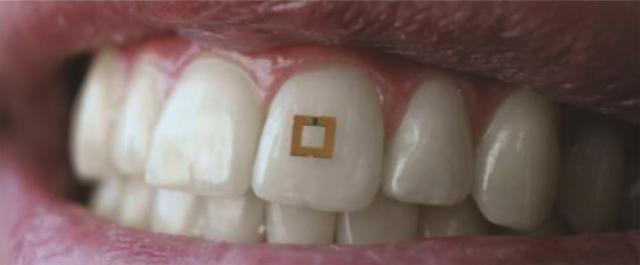tooth-mounted-sensor